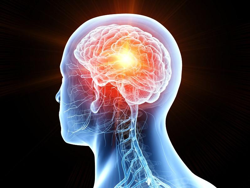Imagen en la que se representa un accidente cerebral